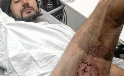 Gareth Clear compartió la foto de la quemadura tras explotar el iphone 6 que llevaba en el bolsillo.