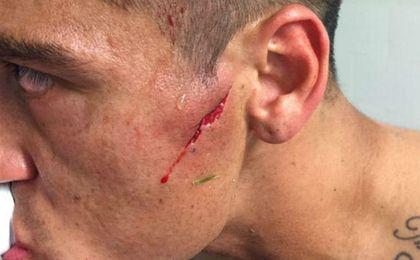 Así quedó la cara del ex del Betis Monzón tras sufrir esta espeluznante brecha