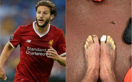 Así terminaron los pies de Lallana tras el Southampton-Liverpool