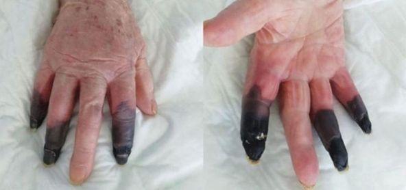 Le amputan tres dedos tras sufrir un efecto secundario provocado por el coronavirus.